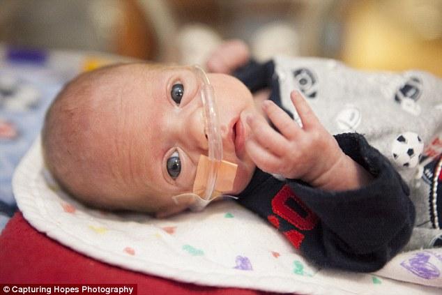 Foto: Capturing Hopes Photography.  Foto de bebê prematuro de 26 semanas.